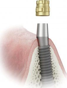 Implant---Conus-Technique